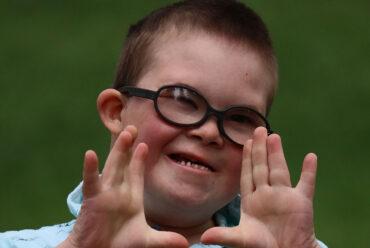 Удружењу деце са менталним инвалидитетом и Дауновим синдромом свака помоћ је добродошла